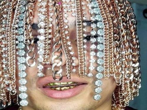 Un rappeur mexicain se fait implanter des chaines en or sur la tête