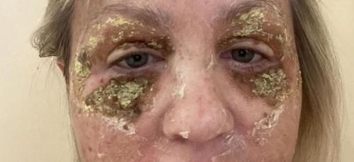 Une femme défigurée après des injections pour réduire les rides...