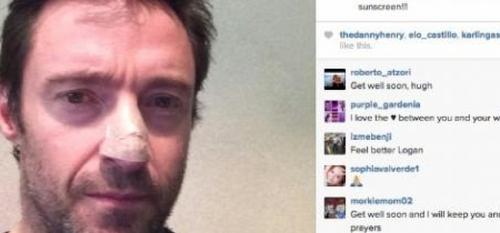 Hugh Jackman affronte un cancer