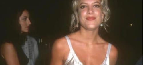 "Chirurgie esthétique : Tori Spelling, l'actrice de ""Beverly Hills"",..."